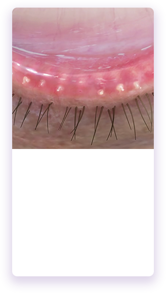 Eyelid with moderate blockage of the meibomian glands