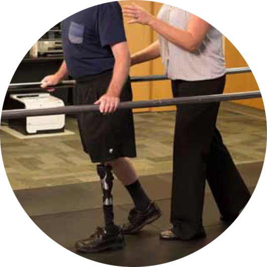 leg amputee using a prosthesis