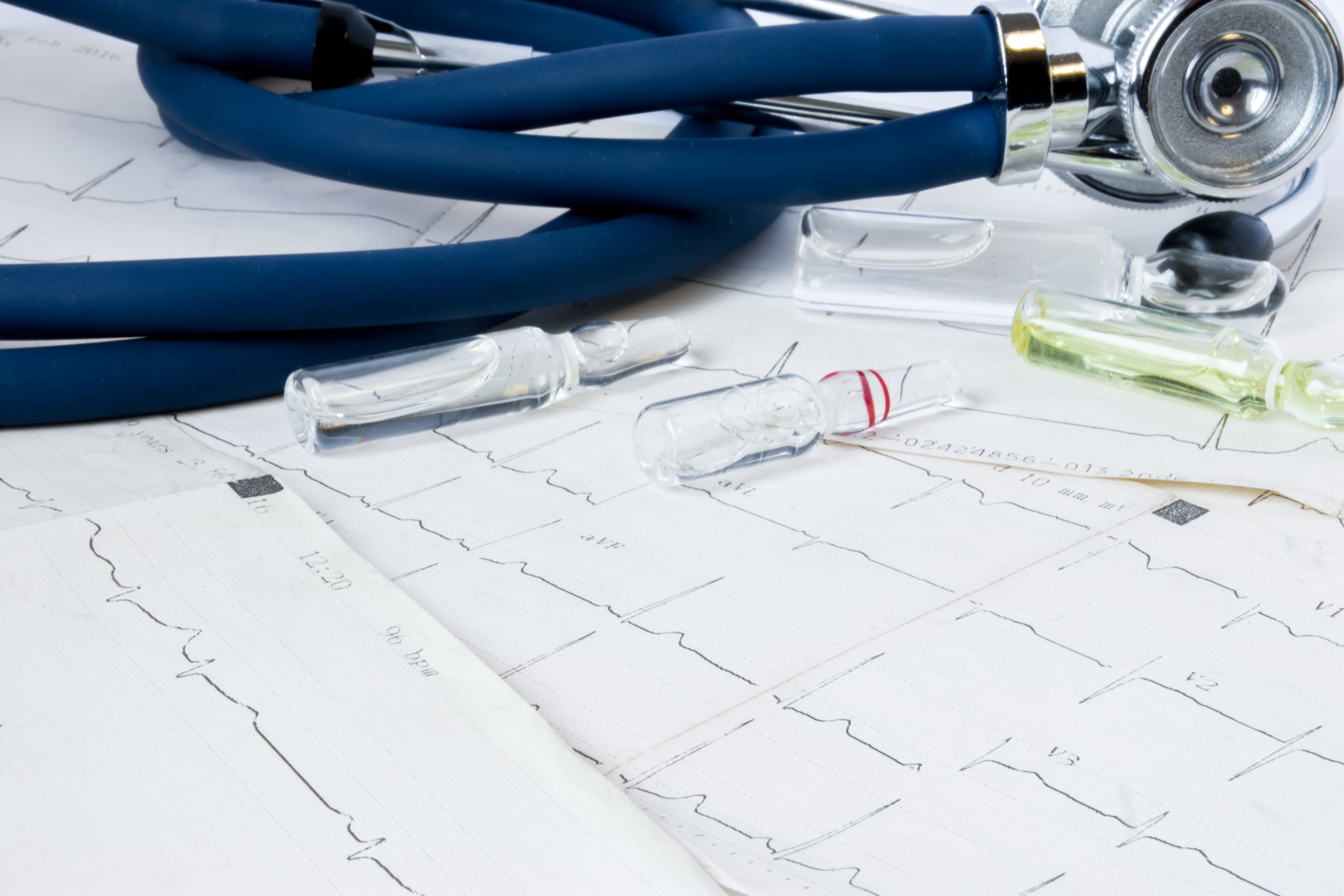 Concept photo treatment of cardiovascular disease arrhythmias cardiac conduction system, recovery and relief of life-threatening cardiovascular system. On ECG strips are vials medicine and stethoscope